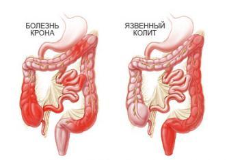 Болезнь крона можно вылечить если убрать причины аутоиммунного воспаления.