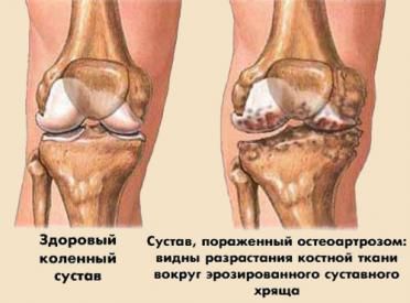 Артрит и артроз (заболевания суставов) - отличие и как лечить