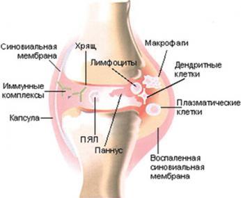 Лечение ревматического артрита коленого сустава артроз коленного сустава.упражнени