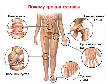 Артрит суставов заболевание хруст в суставах пальцев рук