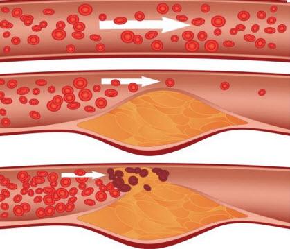 атеросклероз надо лечить как хроническое воспаление