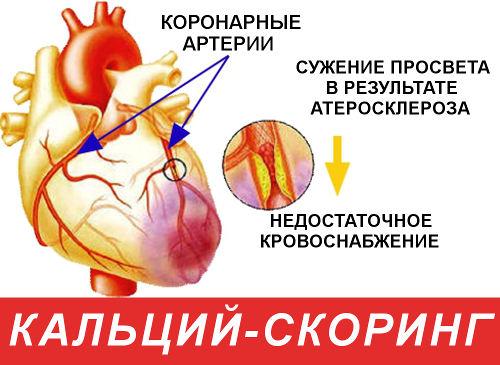 Коронарный кальциевый индекс = 0 означает, что вероятность возникновения сердечного приступа в ближайшие 5 лет очень низкая.