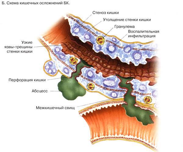 Как вылечить хронические воспалительные заболевания кишечника (Болезнь Крона и Язвенный коли)?