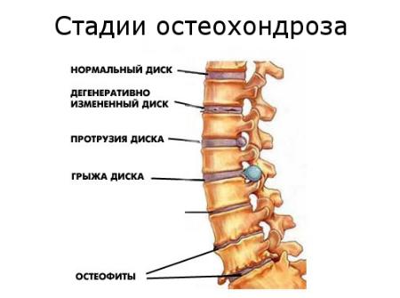 kakaya-maz-luchshe-pri-osteohondroze-otzivi