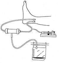 Использование артериовенозного шунта для постоянной гемофильтрации