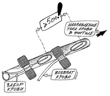 Во избежание регургитации расстояние между фистульными иглами должно быть никак не менее 5 см.