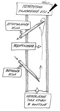 Регургитация (рециркуляция) крови при неправильном положении фистульных игл относительно кровотока
