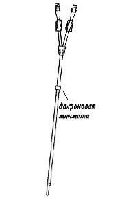 Перманентный двухходовой катетер