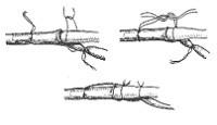 Фиксация шунтовой канюли в сосуде