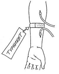 Наложение турникета позади артериальной иглы при недостаточном дебите фистулы
