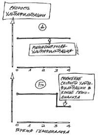 Стандартные профили ультрафильтрации